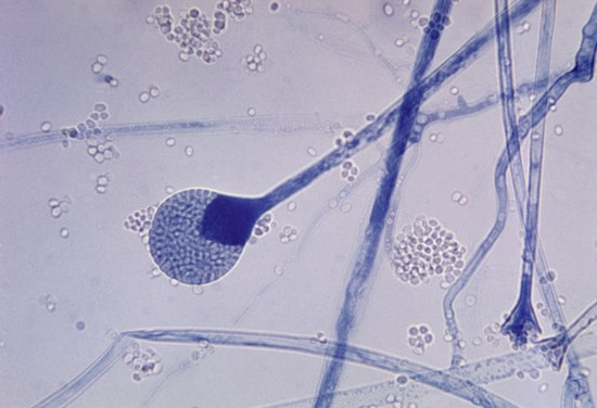 Difference Between Mucor and Rhizopus