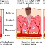 Difference Between Granulation Tissue and Granuloma