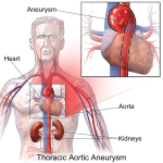 Difference Between True and False Aneurysm