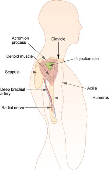 Subcutaneous vs Intramuscular vs Intravenous Injection