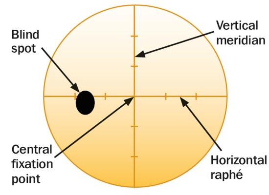 Key Difference - Yellow Spot vs Blind Spot