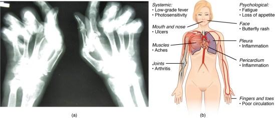 What is Autoimmune Disease