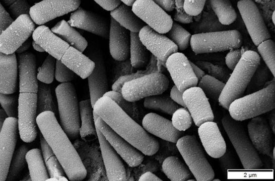 Bacillus Subtilis vs Bacillus Cereus