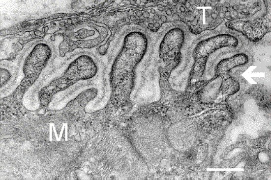 Neuromuscular Junction - Electron Micrograph