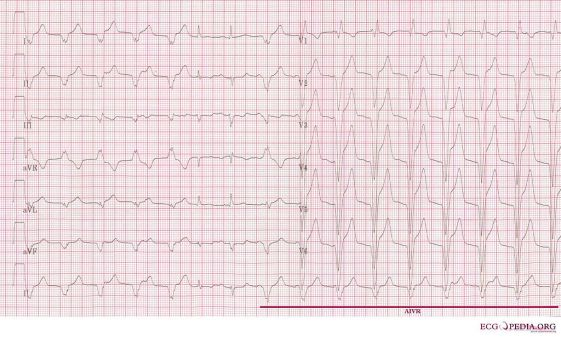 Junctional and Idioventricular Rhythm - Side by Side Comparison