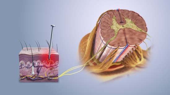 Nociceptive vs Neuropathic Pain in Tabular Form