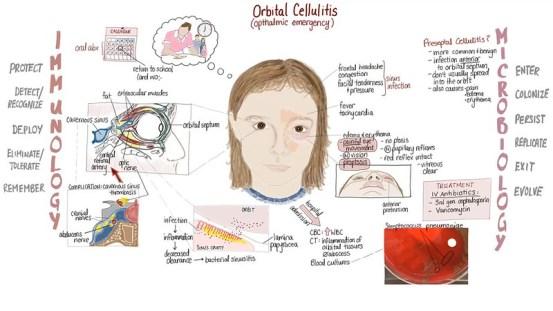 Cellulitis vs Necrotizing Fasciitis in Tabular Form