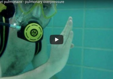 How to understand the pulmonary overpressure in a few seconds (and never forget it)?