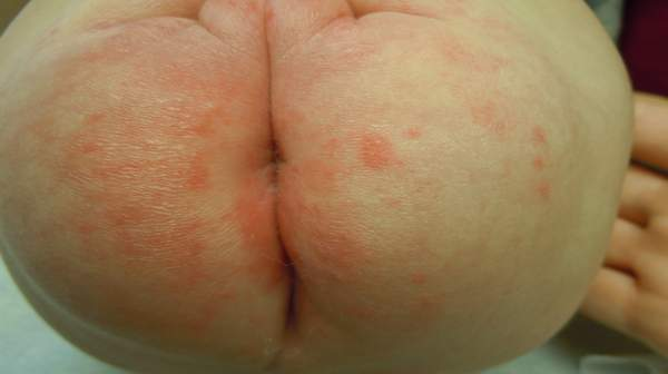 Diaper rash: Learn about Treatments and Prevention