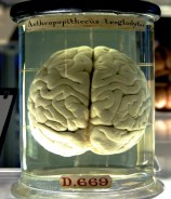 A brain in a jar.