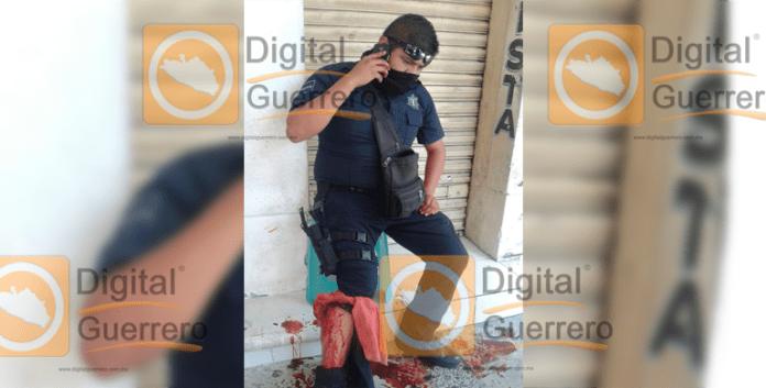 policia_auxiliar_herido_acapulco