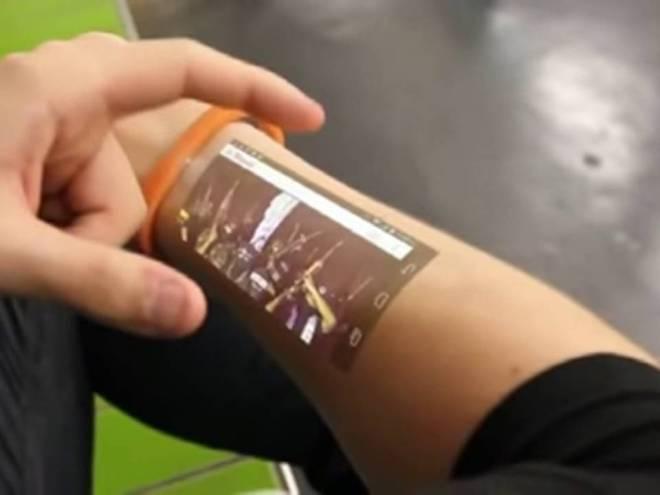 tech arm digital intervention