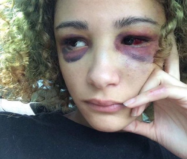 Since The Fatal Shooting The Rappers Battered Ex Girlfriend Has Received Thousands Of Dollars For Reconstructive Eye Surgery As Grim Pictures Came To