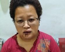 Viral Bu Lurah di Siantar Dipukul Oknum TNI Saat Operasi Yustisi