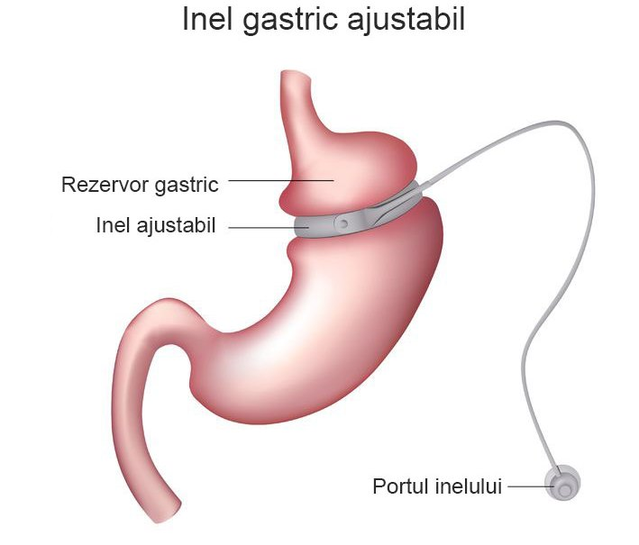 Inelul gastric virtual – puterea hipnozei te ajuta sa fii din nou supla