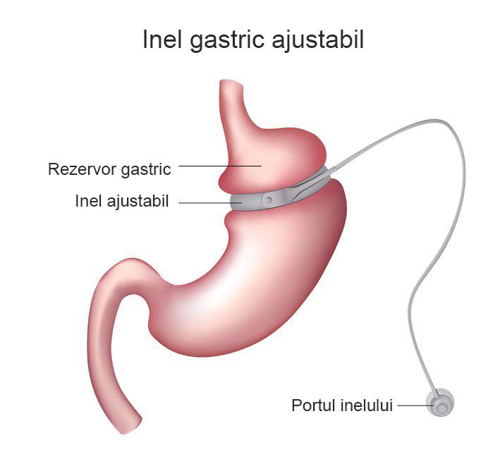 inelul gastric virtual - slabeste fara efort