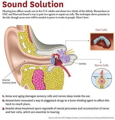 medium resolution of diagram shows the working of the human outer and inner ear including exploded