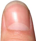color of fingernails and toenails