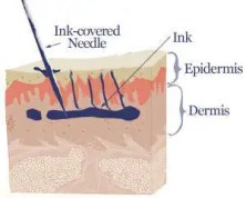Tattoo Removal skin cross section