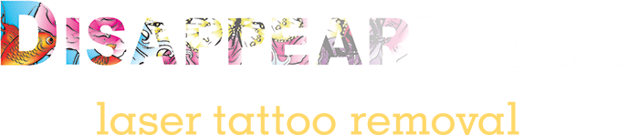 How Much Does It Cost To Remove Your Tattoo At Disappearing Inc