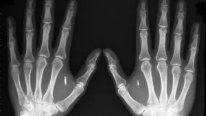 Tech enthusiasts and futurists think implantable radio chips, such as those embedded in Amal Graafstra's hands, could mean safety, security and convenience. But civil libertarians are concerned about privacy.    Picture:  Amal Graafstra