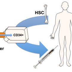 In Vivo Gene Therapy Diagram 1999 Isuzu Rodeo Engine Two Decades Of Clinical Success Is Finally Mounting Ex Transfer To Bone Marrow Derived Cd34 Hematopoietic Stem Cells