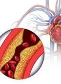 photo_article_cholesterol_9