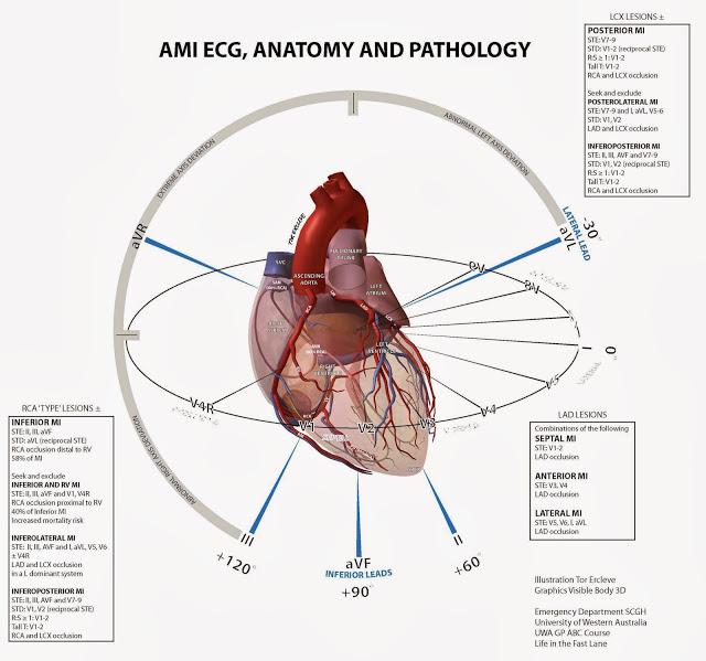 EKG Anatomy