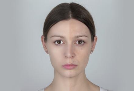 tratament pentru acnee eficient