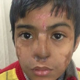 Indian doctors replace young boy's damaged nose with new one