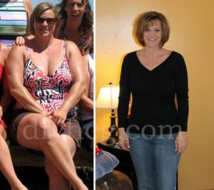 HCG Success Stories Annes HCG Before and After  DoIt