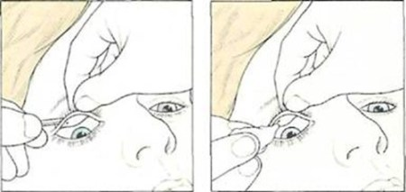 Getting to the underside of the upper eyelid