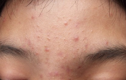 Forehead Acne Face Map