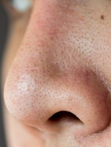Home Remedies For Blackheads And Open Pores