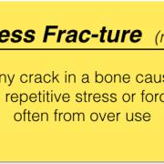 Stress Fx Defined