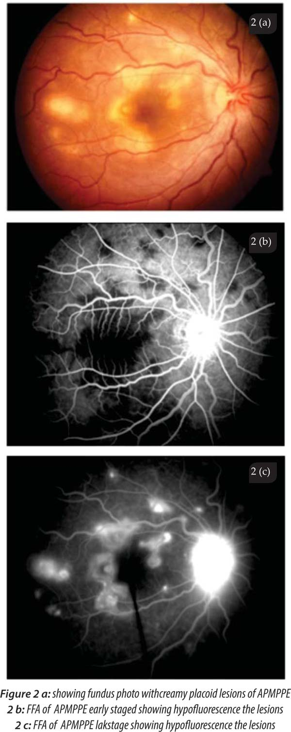 There Are No Convincing Data To Suggest That Treatment With Systemic  Corticosteroids Is Beneficial In Altering The Visual Outcome.