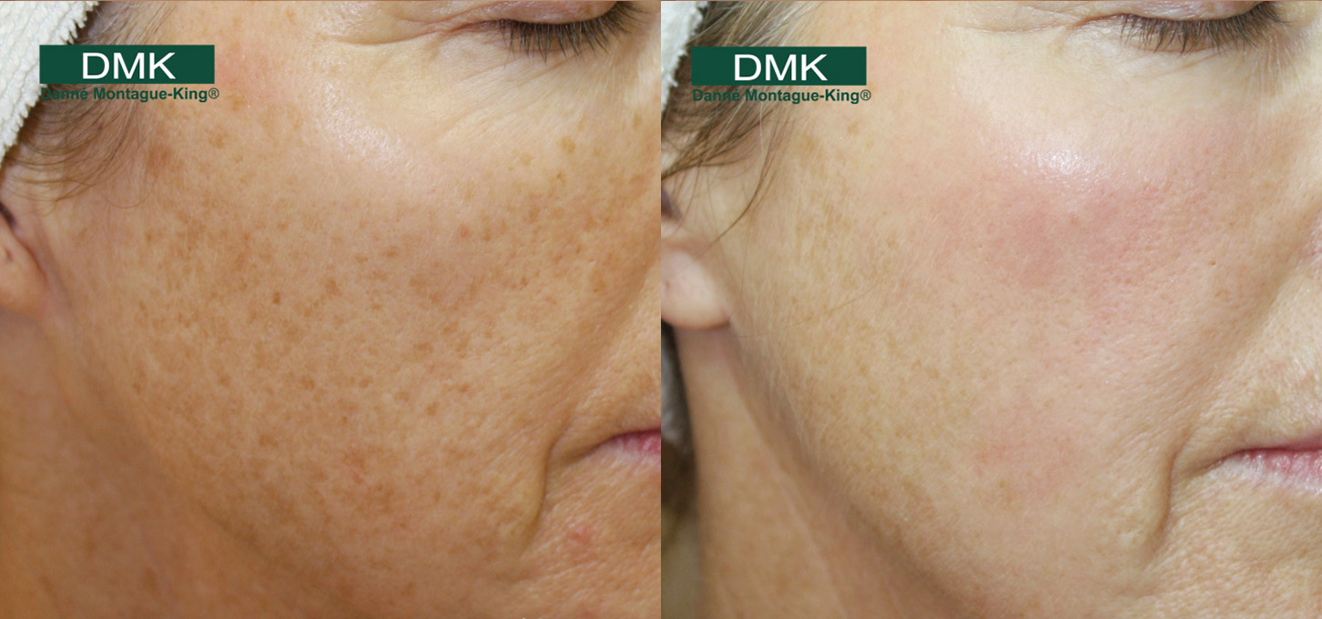 Before and After Gallery - DMK UK