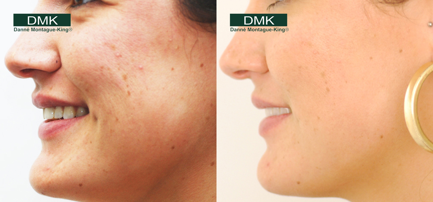 Scarring Treatments Acne Home