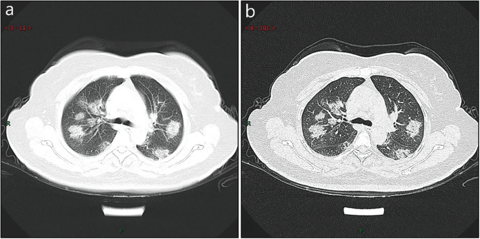 (Left) Typical CT manifestation. A case of a 38-year-old male with fever, dry cough, shortness of breath for 3 days. (Right)  CT imaging of rapid progression stage. A case of a 50 years old female with anorexia, fatigue, muscle soreness, nasal congestion and runny nose for 1 week, sore and itching throat for 2 days.