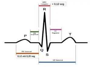 intervalos do eletrocardiograma