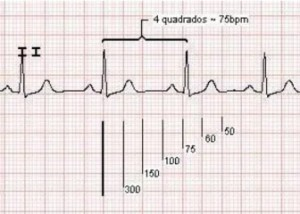 frequência do eletrocardiograma