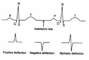 tipos de leitura do eletrocardiograma