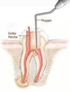 Root canal treatment - Gutta Percha