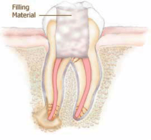 Root canal treatment with filing showing.