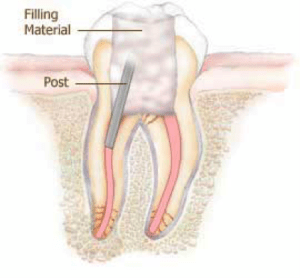 root canal with post for support