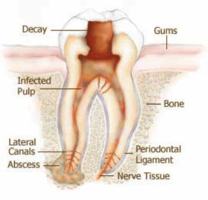 root canal infected pulp