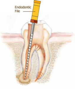 Root canal treatment, removing infected tissue