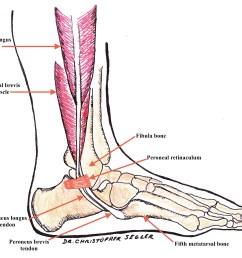 peroneal tendon anatomy [ 3790 x 3140 Pixel ]