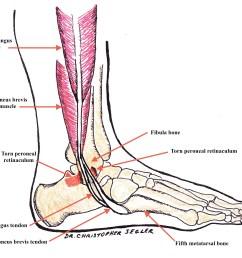 torn peroneal retinaculum with peroneal tendons dislocating at the fibula bone [ 3927 x 3205 Pixel ]