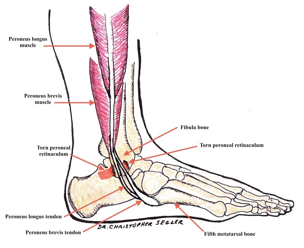 medium resolution of torn peroneal retinaculum with peroneal tendons dislocating at the fibula bone